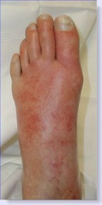 cellulitis-foot